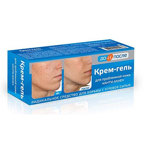 До и после крем-гель для проблемной кожи анти-акне 50 мл
